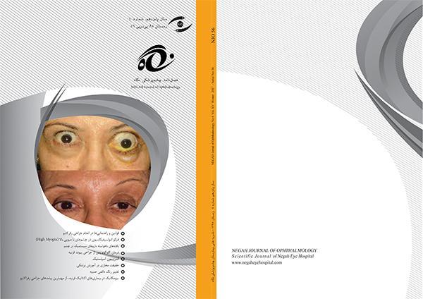 فصلنامه چشم پزشکی نگاه شماره ۴ – زمستان ۹۵